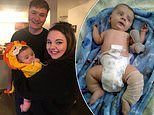 Baby boy has rare condition that means even a sneeze could leave him with a broken bone