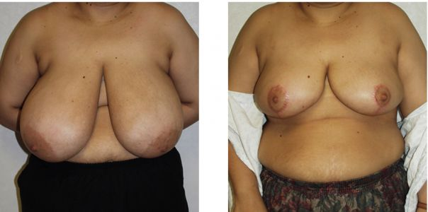 When Is Breast Reduction Recommended?