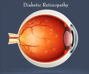 Google's New AI Model can Detect Diabetic Retinopathy
