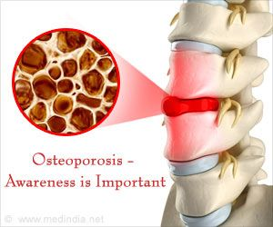 New Medication Helps Treat Osteoporosis