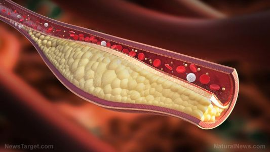 "Can you ""slim down"" bad cholesterol? Researchers identify the enzyme that ""loads up"" fat-carrying particles in the liver"
