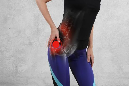 Is Exercise Good for Hip Arthritis?