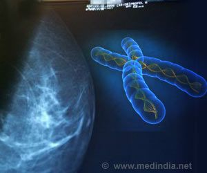 Population Breast Cancer Screening, a Better Approach to Prevent Cancer