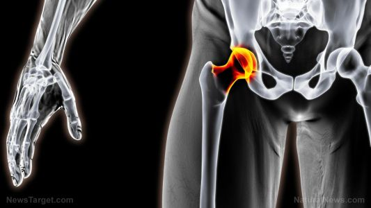 Dietary niacin intake affects risk of hip fracture, hip bone mineral density