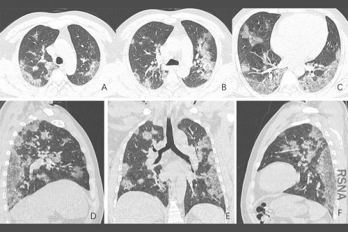 Treating Lung Cancer in COVID-19 Times: Update From ESMO