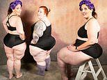 Woman, 44, who has abnormal fat build-up on thighs says social media boosted her confidence