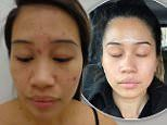 How woman, 26, cleared up her adult acne in 12 weeks