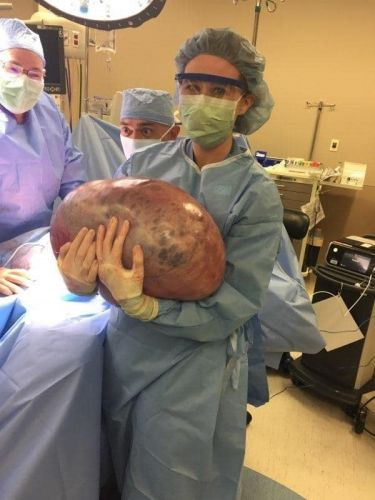 A Woman With An Undetected 50lb Ovarian Cyst Was Told To Just 'Lose Weight'