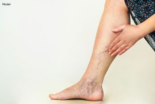 Eliminate Varicose Veins With Laser Skin Resurfacing