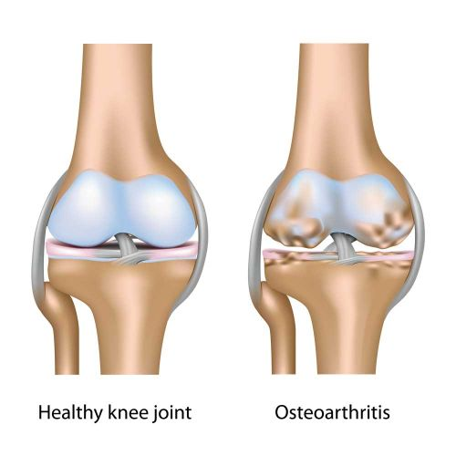 The Surprising Factor That Increases Your Risk of Knee Arthritis