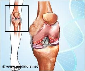 Drug Combination may Reverse Osteoarthritis
