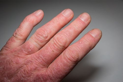 Clinical Challenges: Diagnosing Psoriatic Arthritis