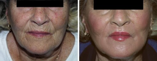Anti-Aging, Non-Surgical Facial Rejuvenation
