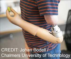 Mind-controlled Arm Prostheses: How Does It Work?