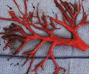 Heart Diseased Patient Coughed Up Lung-Shaped Blood Clot