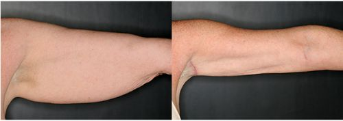 Why Choose SmartLipo™ for Arm Contouring