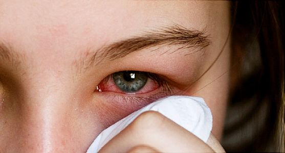 'Pink Eye' Often a Symptom of COVID-19