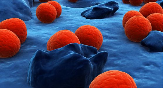 New single-dose antibiotic effectively treats uncomplicated gonorrhea infections