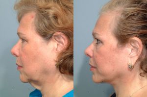 Neck Lift vs. Neck Liposuction