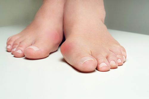 A guide to treating bunions with alternative medicine