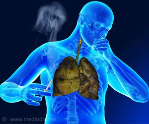 New Approach to Treating Tuberculosis Identified