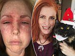 Woman, 42, wakes up with a BLACK EYE and swollen face after being scratched by her cat