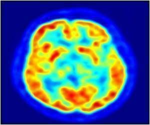 Formation Site of tau Protein Tangles in Alzheimer's Disease Revealed