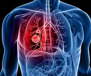 Tuberculosis Infection Activated Through New Cancer Treatment