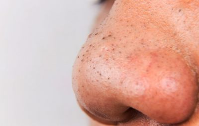 I Let Someone Squeeze My Blackheads
