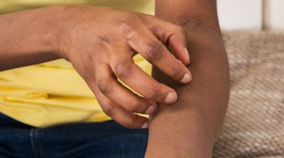 Dos And Don'ts For Eczema Sufferers