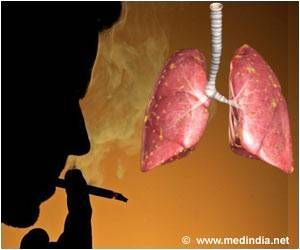 Lung Cancer Screenings May Influence Smoking Cessation in High-risk Smokers