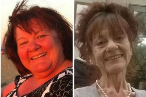 Gastric bypass destroyed this woman's life and left her with an eating disorder