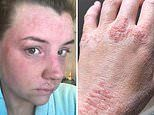 Woman left with horrific steroid withdrawal syndrome after doctors prescribed creams for 20 years