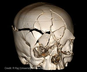 How To Reduce Dangerous Swelling in Traumatic Brain Injury?