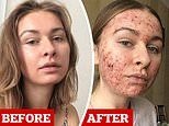 Woman, 22, shares candid selfies of severe acne which suddenly broke out across her entire face