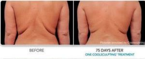 CoolSculpting: Where Does the Fat Go?