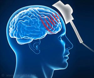 Transcranial Magnetic Stimulation may Help Treat Stroke, Dementia, and Migraines