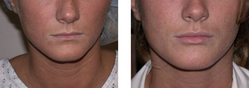 Fat Transfer for Facial Rejuvenation