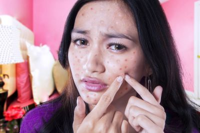 Science Inconclusive On Acne Causes