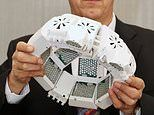 The brain-zapping helmet that could help to cure dementia