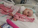 'Little princess' toddler dies from a fist-sized brain tumour