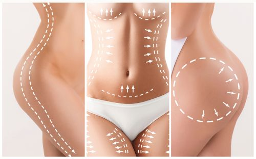 Liposuction: Preparation Before the Procedure