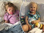 Toddler loses her eye to a rare form of cancer after her mother noticed she couldn't see