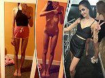 Anorexia dancer survived on 300 calories a day