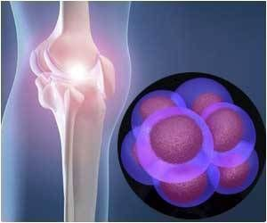 New Routes to Treating Osteoarthritis