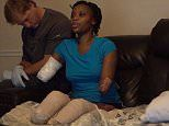Mother loses her unborn child, arms and legs from sepsis