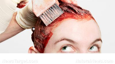 Woman ends up in emergency room after severe reaction to hair dye