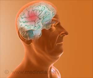 Chief Cause of Alzheimer's Disease and Cognitive Decline Identified