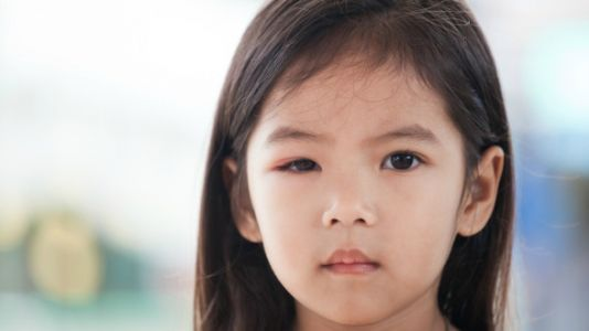 What Your Eye Doctor Wants You To Know About Your Kid's 'Pink Eye'