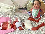 Preemie born more than 3 YEARS ago has gone home from hospital